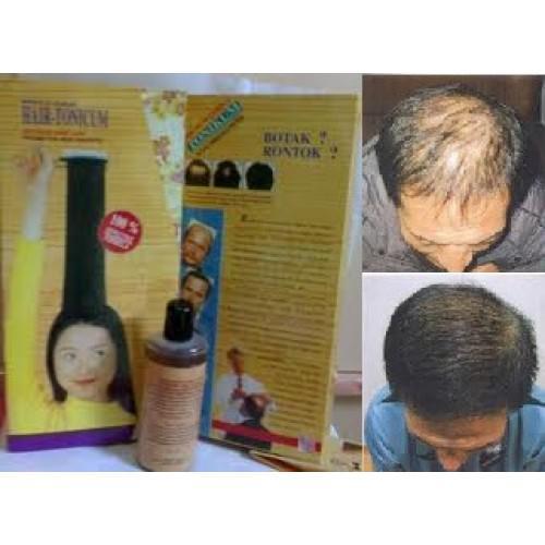 penumbuh rambut hairtonikum